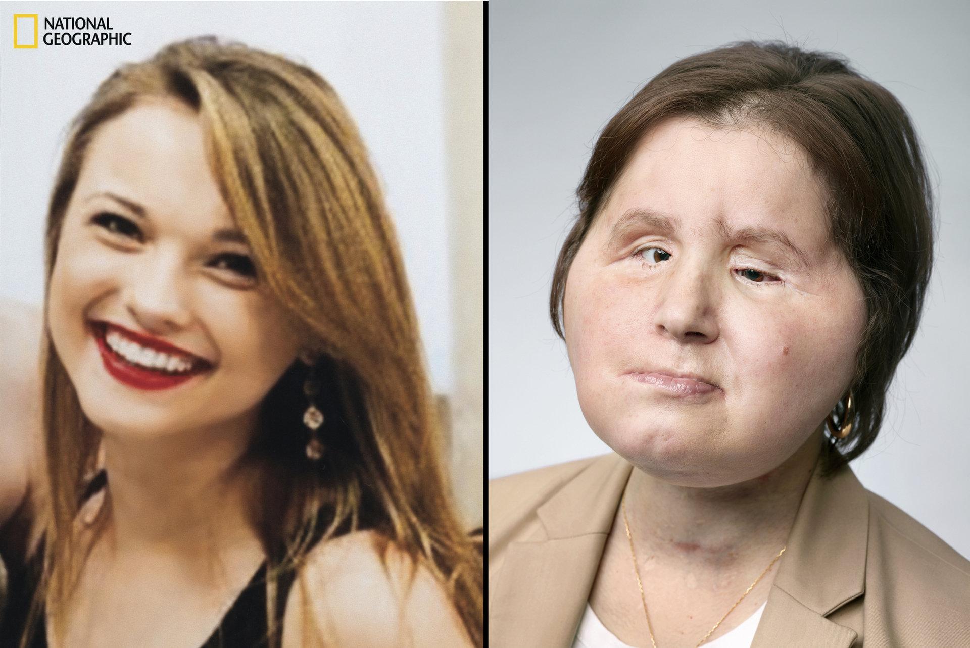 Nowe życie Katie. National Geographic przedstawi historię przeszczepu twarzy u najmłodszej pacjentki w USA